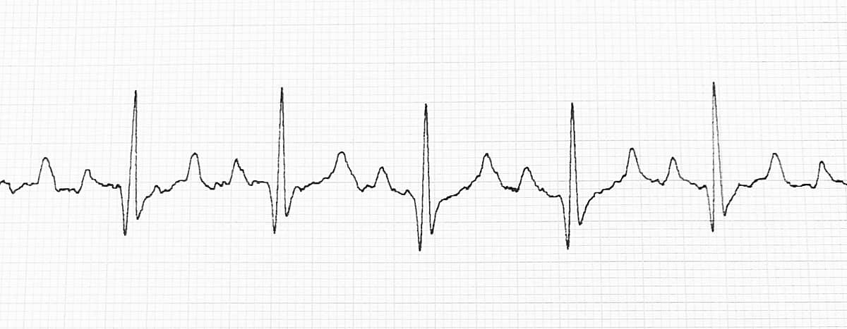Normal IW EKG