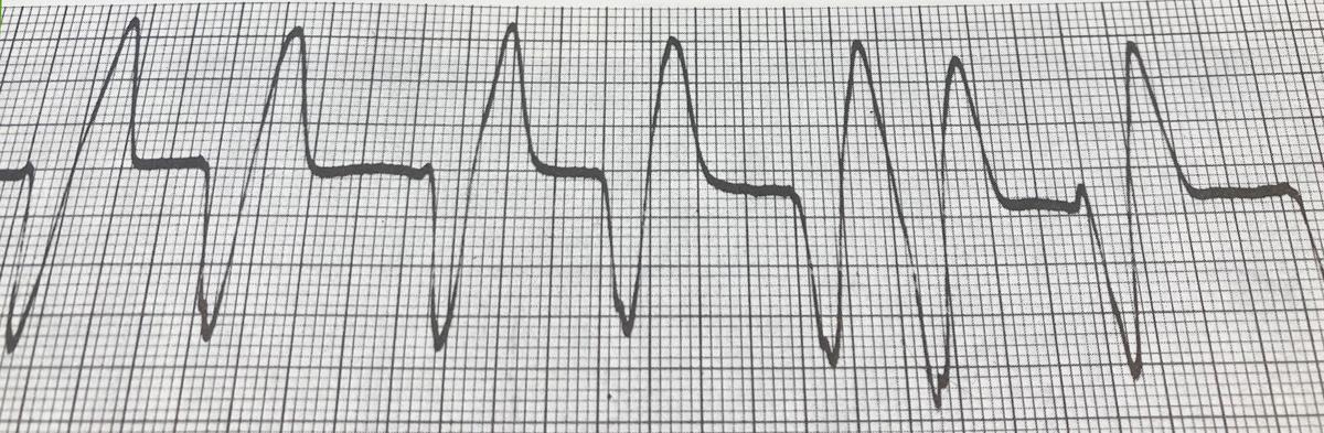 IW EKG Showing VTach